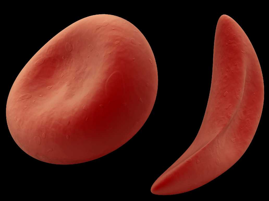 september is national sickle cell awareness month